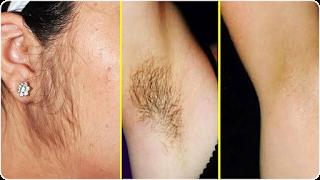 अनचाहे बालों को बिना दर्द के हटाने का ये आसान नुस्खा
