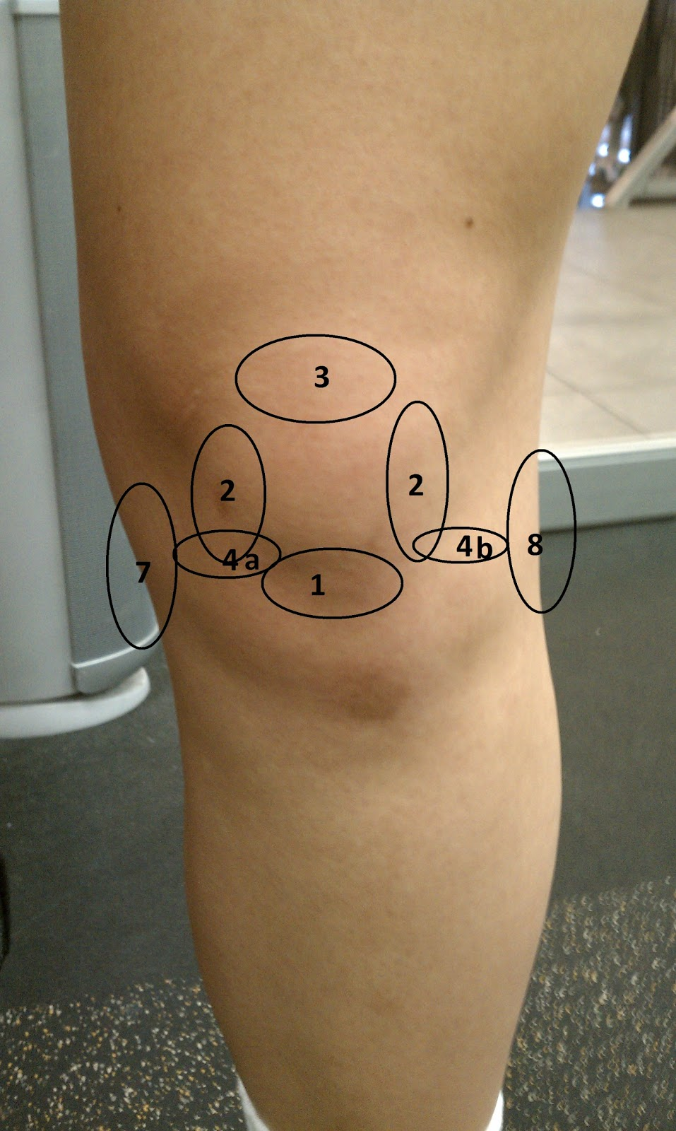 Chart Location Pain Knee