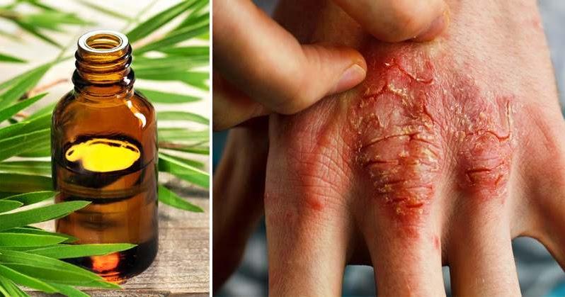 Eczema Cream Recipe - Featuring Lavender & Tea Tree Oil