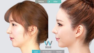 foto sebelum dan sesudah operasi plastik hidung Korea
