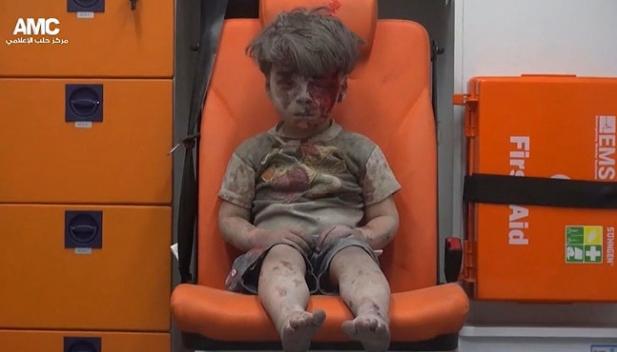 Foto Bocah Suriah Duduk Diam Penuh Luka Guncangkan Dunia