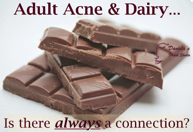 Adult Acne and chocolate.  Is there a connection?