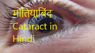 Cataract In Hindi