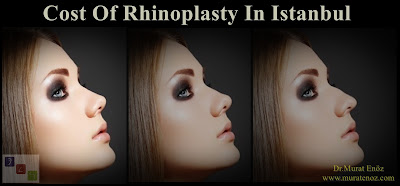 Cost Of Rhinoplasty In Istanbul, Cost Of Rhinoplasty In Turkey, Rhinoplasty Cost in İstanbul, Rhinoplasty Cost in Turkey, Nose Job Cost in İstanbul, Nose Job Cost in Turkey