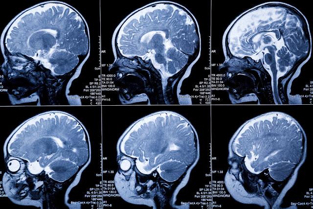 تطور دماغ الطفل و الموجات اللولبية 1