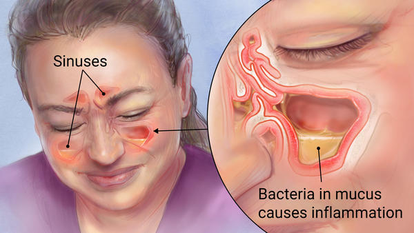 Kill Sinus Infection Within Minutes, With What You Have In Your Kitchen