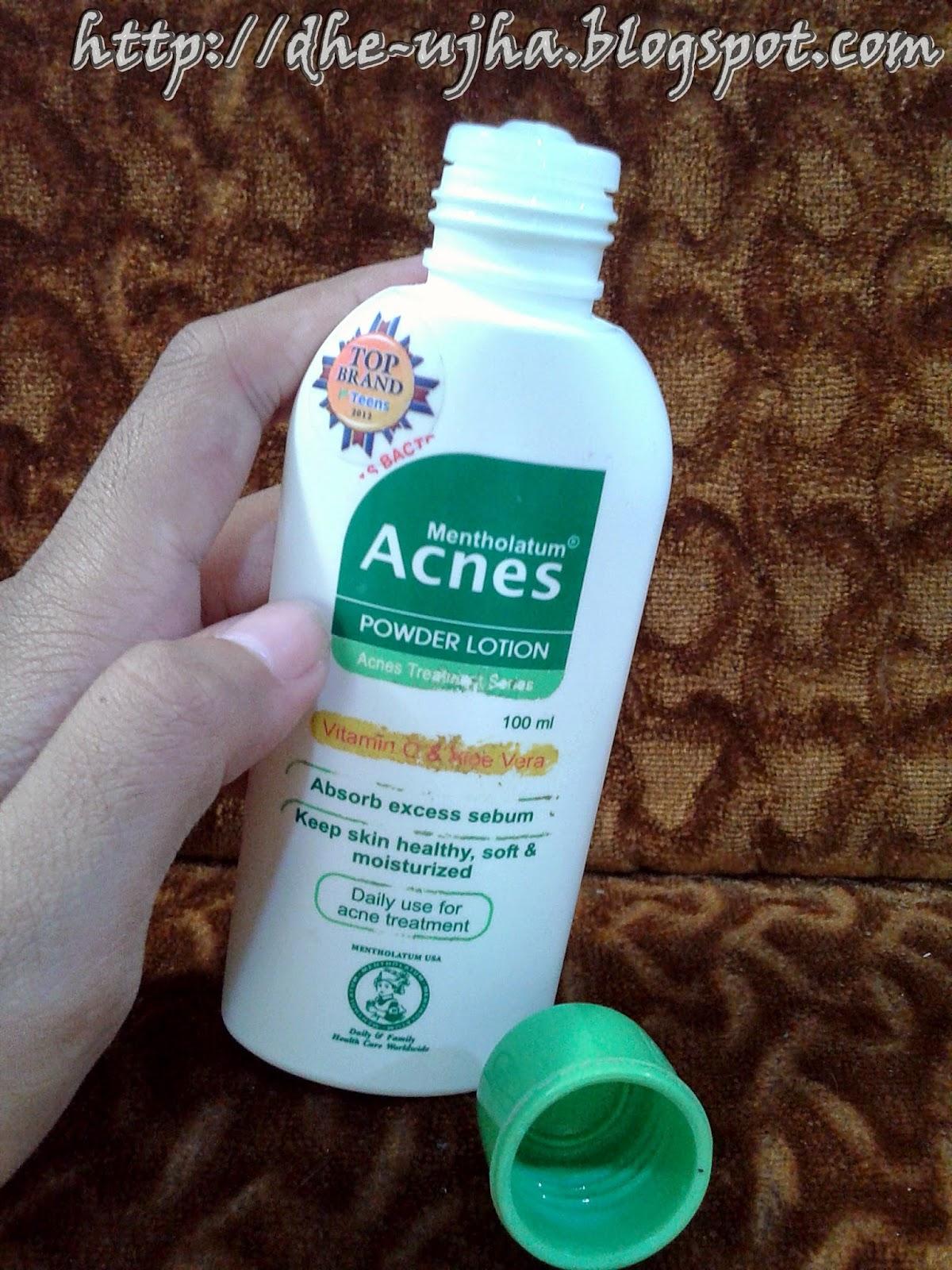penampakan acnes powder lotion setelah tutupnya dibuka