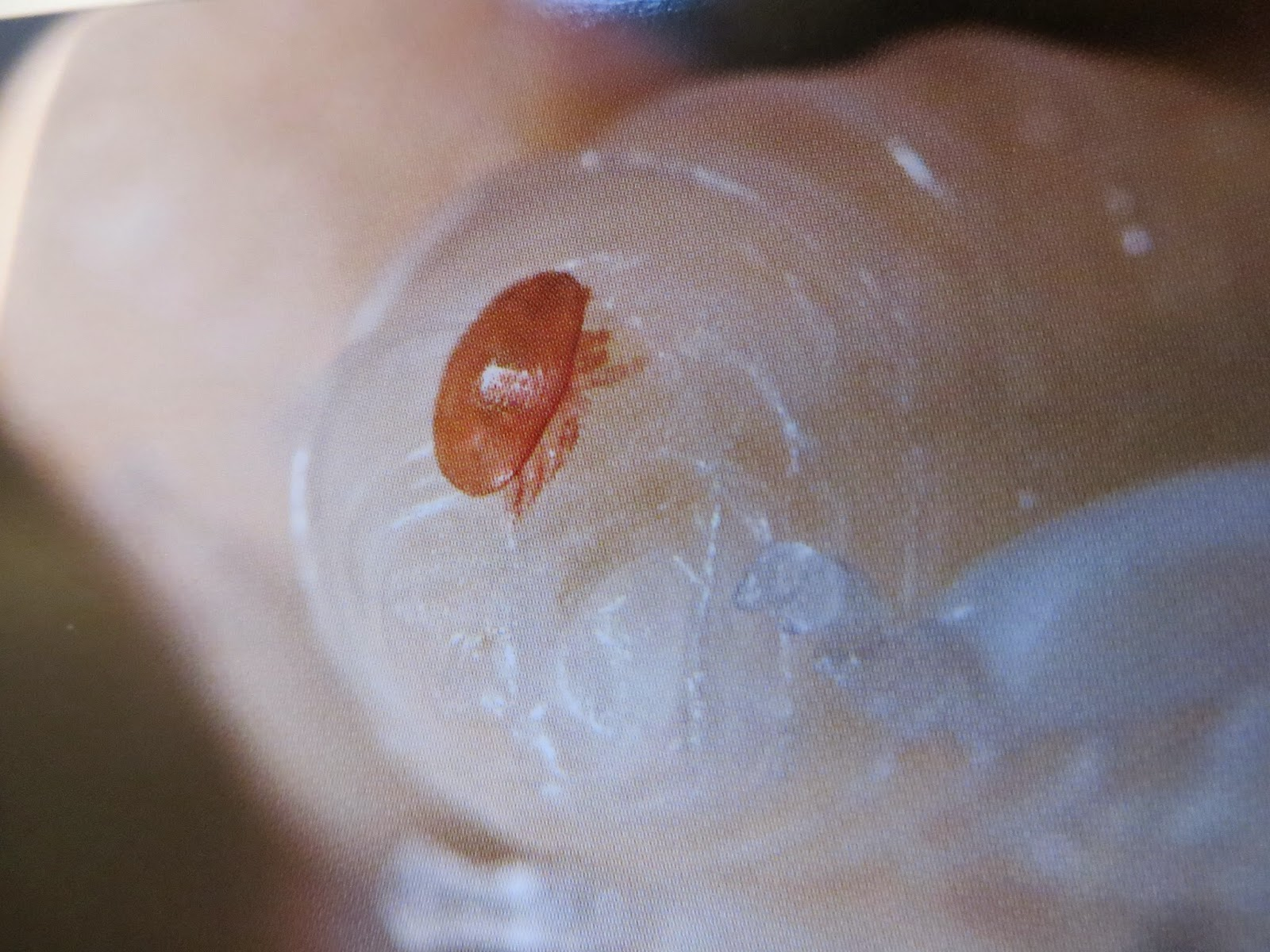 varroa mite on bee larvae