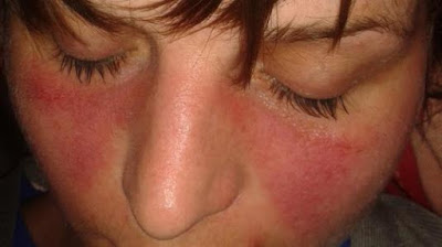 It is distinguished from other variants of lupus erythematosus that remain confined to th Systemic Lupus Erythematosus Symptoms And Treatment