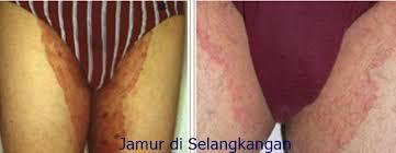 pengobatan penyakit gatal selangkangan dan kelamin karena jamur
