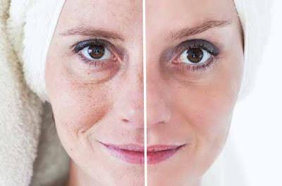 Des traitements pour détoxifier la peau du visage
