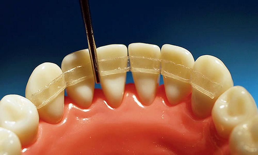 Orthodontic-Retainer