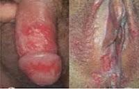 Penyakit Sipilis Pada Wanita Dan Pria