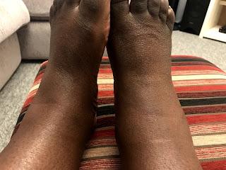 Presentation of RA in Feet - Lucy Benton April 2018