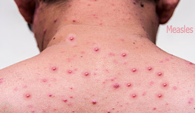 measles, হাম