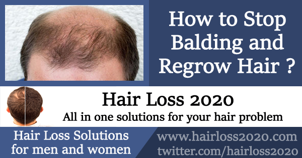 How to Stop Balding and Regrow Hair