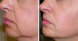 Yüz Sarkması Nedenleri ve Tedavisi