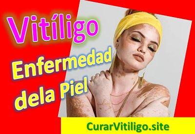 vitiligo-enfermedad-piel-manchas-blancas