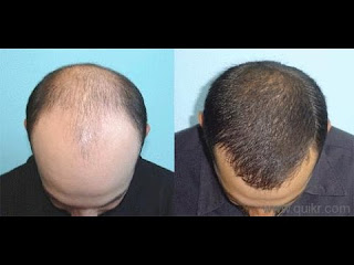A man with hair transplant