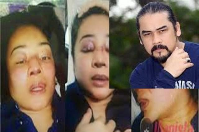 Kali Ke-2 Dituduh Cederakan Isteri, Awie Tetap Mengaku Tak Salah