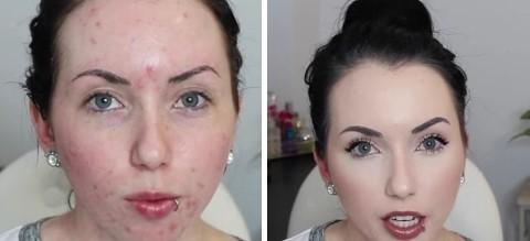 16 Tutorials Makeup Untuk Kulit Berjerawat
