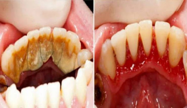 تخلص من رواسب الأسنان بسرعة لا أسنان صفراء أو بشعة بعد اليوم!