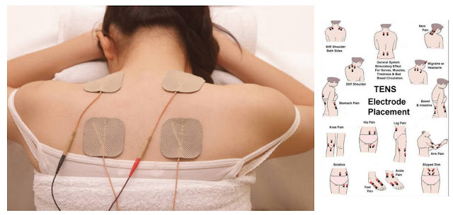 Tens Electrical Therapy for Back Pain