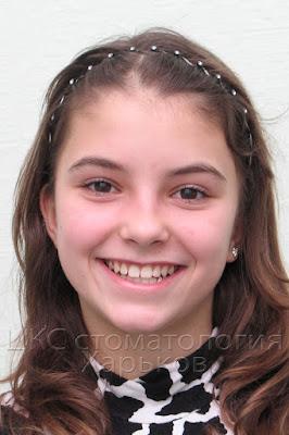 Пациентка до ортодонтического лечения  2005 год