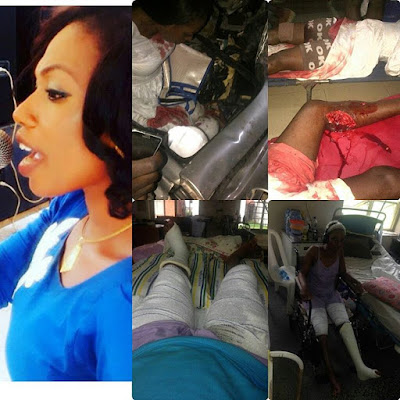 HEARTBREAKING DETAILS OF HOW DANGOTE TRUCK CRUSHED A NIGERIAN ARTISTE LEG AND ABANDONED HER IN THE HOSPITAL (PHOTOS)