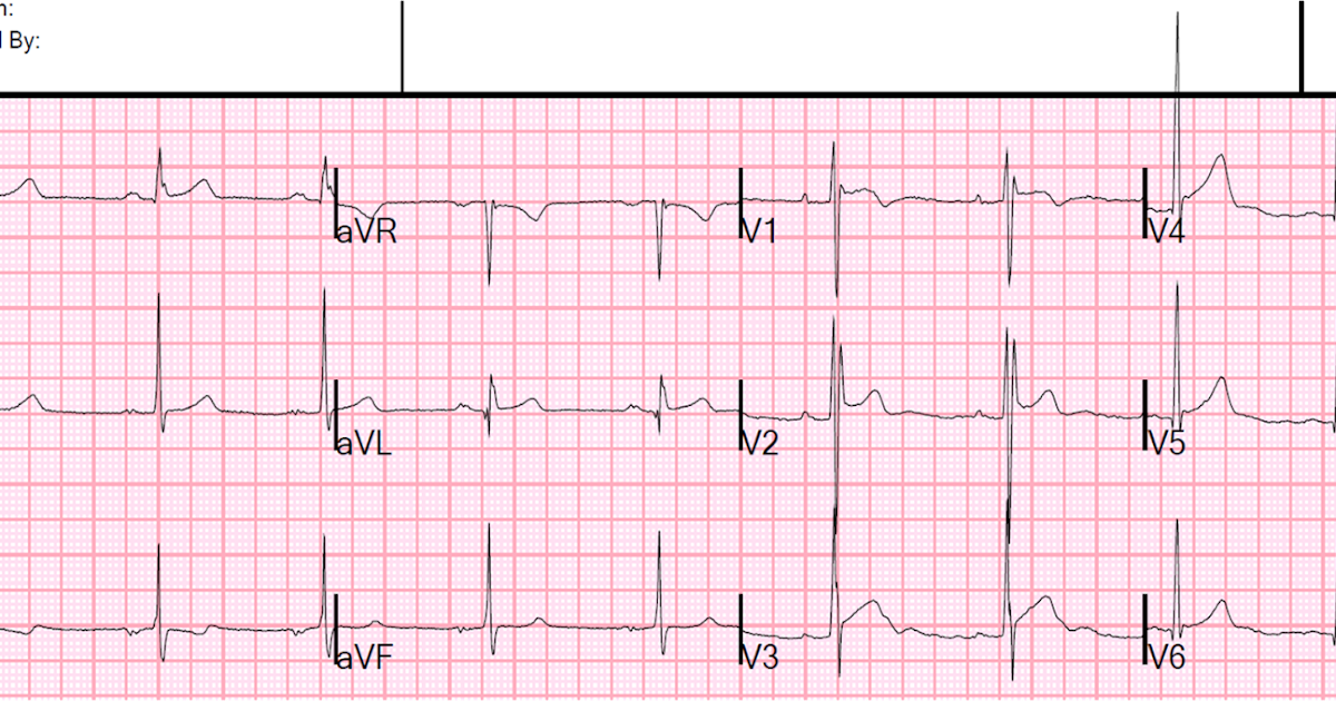 Dr Smith's ECG Blog Is This Type 60 Brugada SyndromeECG Pattern Delectable Ecg Pattern