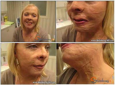 Phương pháp lăn kim trị sẹo lõm làm mờ sẹo hiệu quả