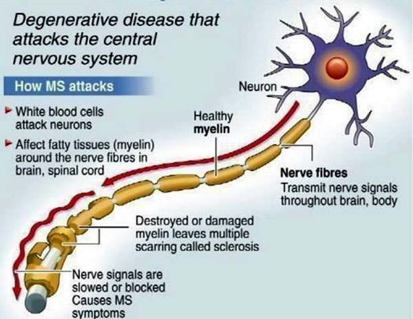 Multiple sclerosis diagram