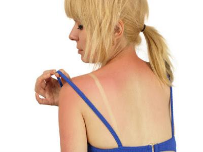 Manfaat Kentang Atasi Efek Paparan Matahari