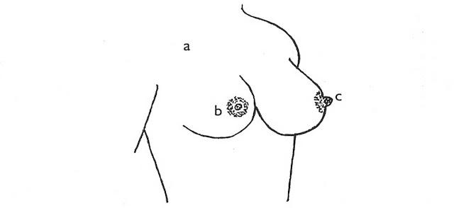Anatomi Payudara dan Fisiologi Laktasi