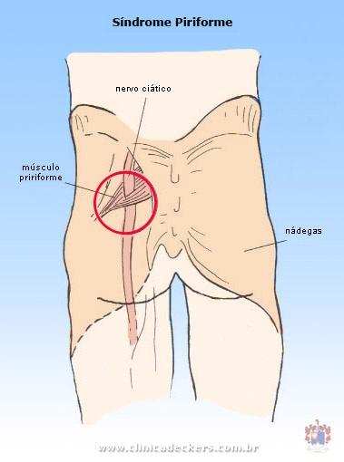 dor profunda das nádegas à dor na perna