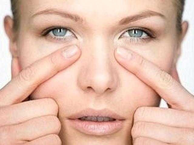 Inilah 3 Cara Menghilangkan Kantung Mata