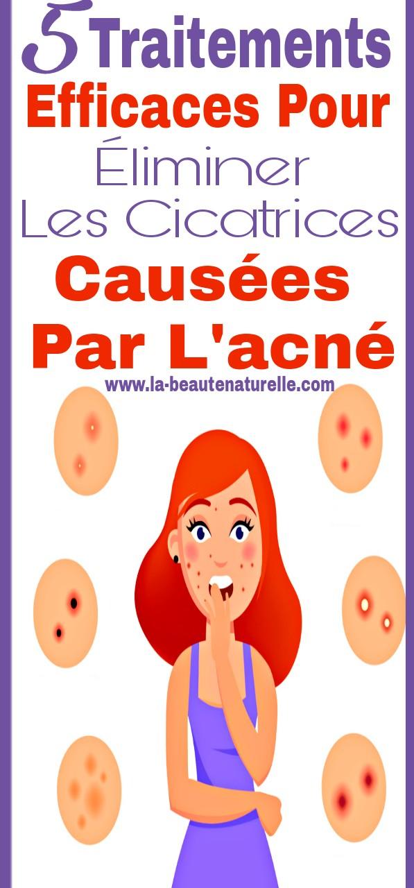 5 Traitements efficaces pour éliminer les cicatrices causées par l'acné