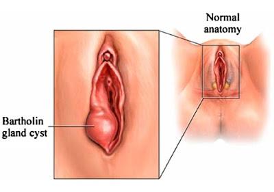 Cara Menghilangkan Benjolan Di Vagina Tanpa Operasi - Obat Kista Bartholin