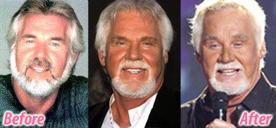 Kenny Rogers Plastic Surgery Before And After Facelift