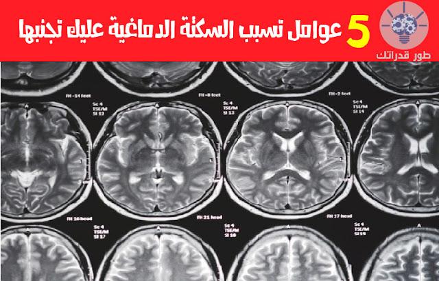 5 عوامل تسبب السكتة الدماغية عليك تجنبها