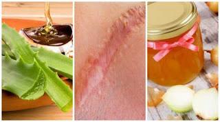 6 solutions naturelles pour diminuer l'apparence des cicatrices