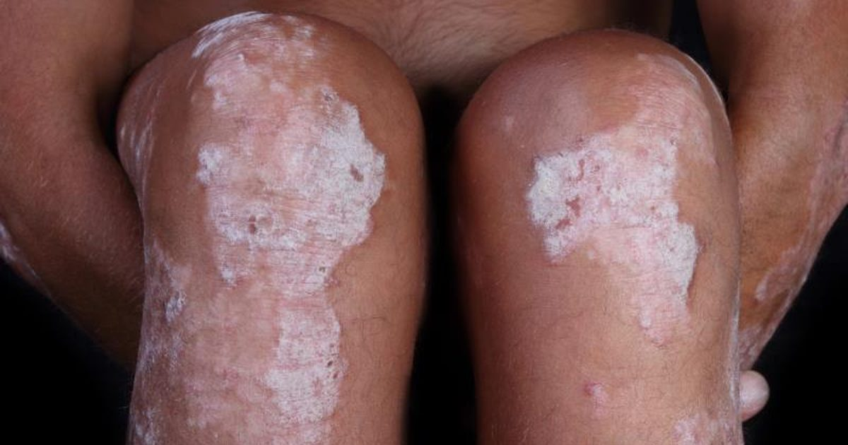 La psoriasis los aparatos para el tratamiento