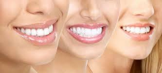 Những thắc mắc về phương pháp tẩy trắng răng