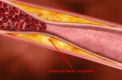 Obat Herbal Untuk Mengatasi Darah Yang Tersumbat