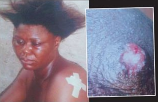 Photo of a woman's nipple was bitten off and swallowed during a fight in Lagos