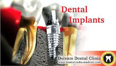 http://www.dentist-india-madurai.com