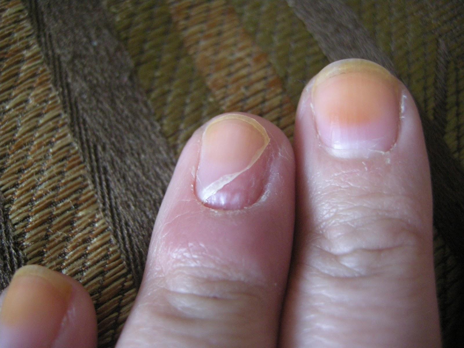 smilejustcoz: Finger infection