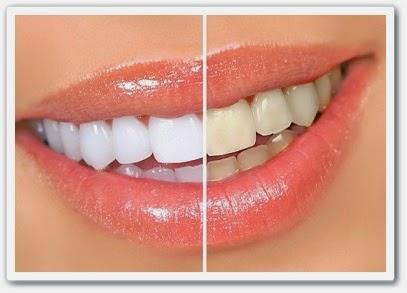 Видео урок Отбеливание зубов в дома