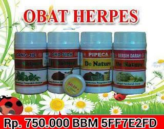 Pengertian Penyakit Herpes Genitalis