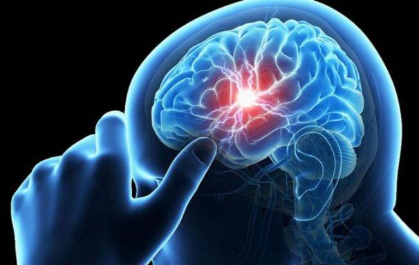 الجلطة الدماغية تعرّفوا على اسبابها وطرق الوقاية منها؟